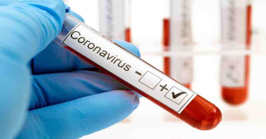 आज फेरि थप ९ जनामा कोरोना भाइरसको संक्रमण पुष्टि