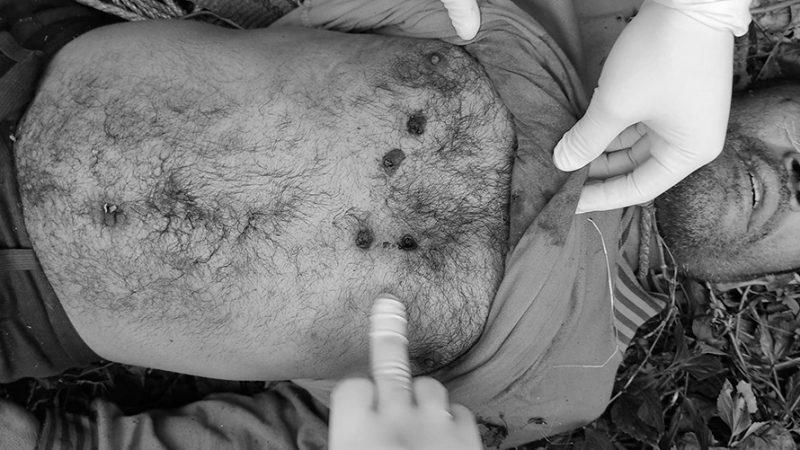गुल्मीमा मृत अवस्थामा फेला परेका विकको हत्या गरिएको आशंका